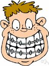 braces - an appliance that corrects dental irregularities