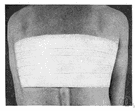 Adhesive plaster - adhesive tape used in dressing wounds