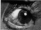 pterygium - either of two thickened triangular layers of conjunctiva extending from the nasal edge of the eye to the cornea