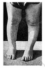 bowleg - a leg bowed outward at the knee (or below the knee)