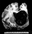 meningioma - a tumor arising in the meninges which surround the brain and spinal cord