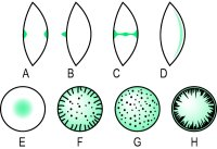 Fig. C3 Examples of cataracts (A, bipolar; B, pyramidal; C, axial; D, subcapsular (cupuliform); E, nuclear; F, coronary; G, snowflake; H, cuneiform)