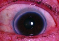 Fig. C19 Advanced corneal arcus