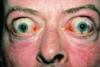 Fig. E7 Severe bilateral exophthalmos and lid retraction in Graves disease. (From Kanski 2003, with permission of Butterworth-Heinemann)