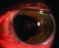 Fig. I16 Large sector iridectomy, which has been performed to excise an iris melanoma