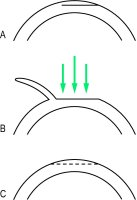 Fig. L4 LASIK procedure. A, an incision is made into the anterior part of the cornea leaving a hinge of intact margin (shown on the left). B, the corneal flap is rolled back leaving it attached at its hinge. Excimer laser ablation is performed on the expos cornea