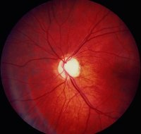 Fig. L6 Leber′s hereditary optic atrophy (From Kanski 2007, with permission of Butterworth-Heinemann)