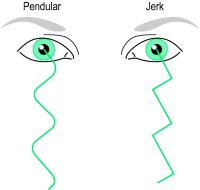 Fig. N3 The two main types of nystagmus, jerk and pendular