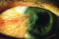 Fig. P21 Advanced case of pterygium