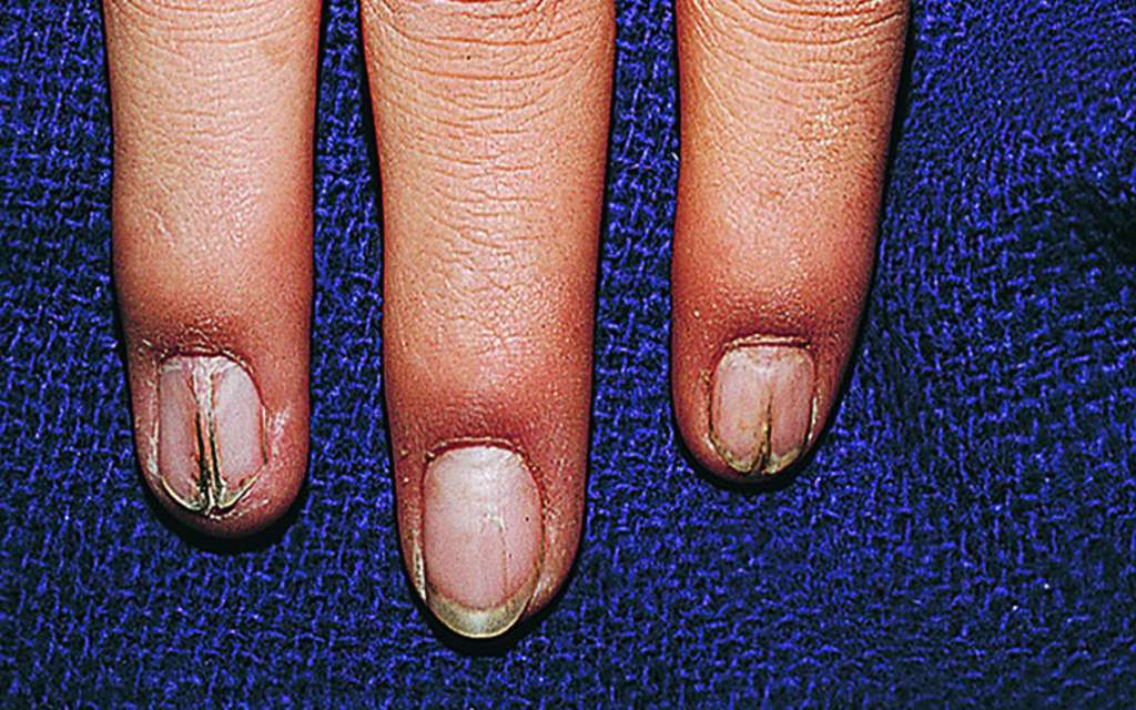Full Size Picture nail-patella-syndrome.jpg