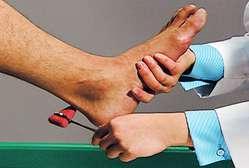Achilles tendon reflex | definition of Achilles tendon