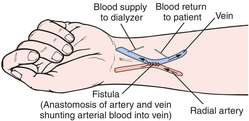 arteriovenous fistula definition of arteriovenous fistula by