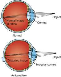 Astigmatism   definition of astigmatism by Medical dictionary