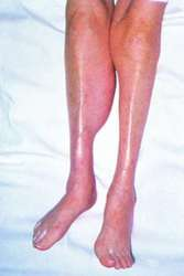 Baker cyst images