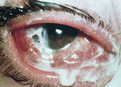 Secondary Conjunctivitis Definition Of Secondary