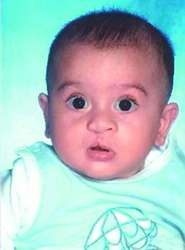 digeorge s syndrome definition of digeorge s syndrome by medical