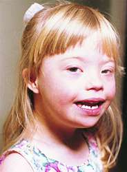 Down syndrome | definition of Down syndrome by Medical