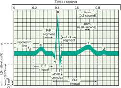 Electrocardiogram | definition of Electrocardiogram by Medical