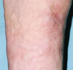Eosinophilic Fasciitis Definition Of Eosinophilic Fasciitis By