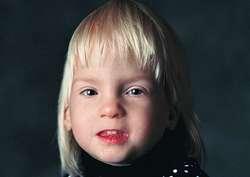 Fetal alcohol syndrome facial photo