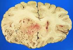 Glioblastoma multiforme | definition of glioblastoma multiforme by