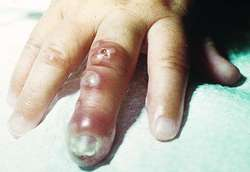 Herpetic whitlow | definition of herpetic whitlow by Medical
