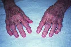 Experimentelle Arthritis deformans