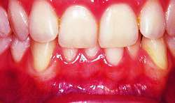incisor relationship definition dictionary