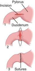Pyloroplasty | definition of pyloroplasty by Medical ...  Pyloroplasty | ...