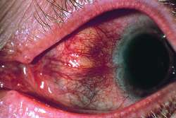 Scleritis Definition Of Scleritis By Medical Dictionary