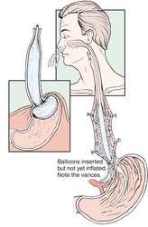 Sengstaken Blakemore Tube Definition Of Sengstaken