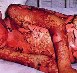 Stevens-Johnson Syndrome (SJS Causes and Treatments - WebMD) Pictures of steven johnson syndrome