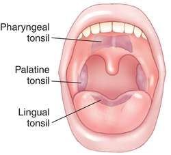 tonsil definition of tonsil by medical dictionary