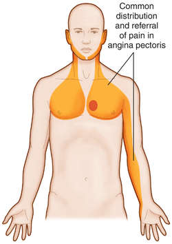 Pain near sternum left side