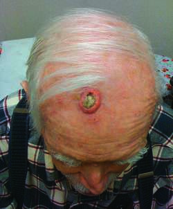 Early Squamous Cell Horn Carcinoma