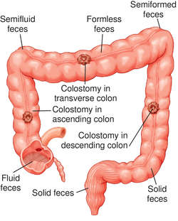 Diverting Transverse Loop Colostomy Cpt Code New The Best Of 2018