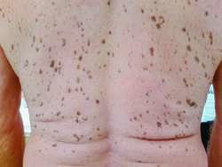 Seborrheic keratosis | definition of seborrheic keratosis by