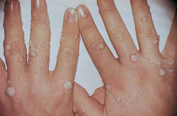 Wart | definition of wart by Medical dictionary