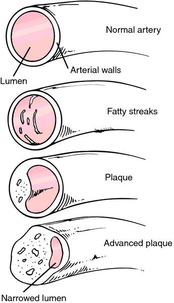 meaning coronary atherosclerosis