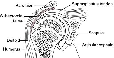 Suprapatellar artrozė