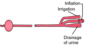 Catheter Definition Of Catheter By Medical Dictionary