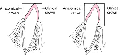 Crown | definition of crown by Medical dictionary