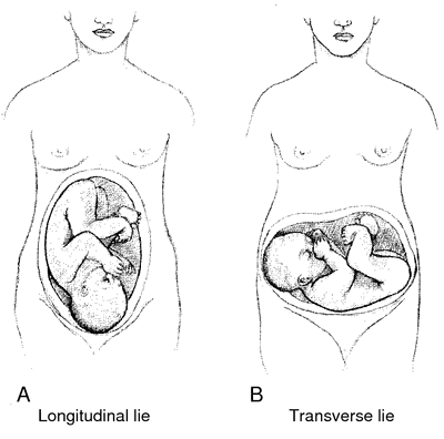 Longitudinal lie | definition of longitudinal lie by Medical
