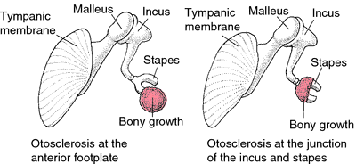 Otosclerosis | definition of otosclerosis by Medical dictionary