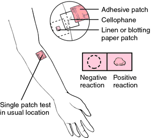 nickel patch test at home