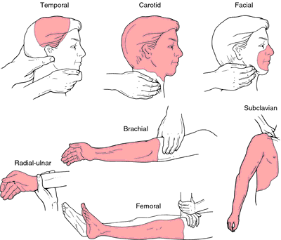 Trigger Point Definition Of Trigger Point By Medical Dictionary