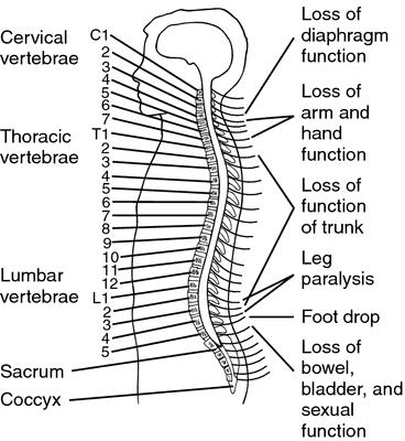 quadriplegic patient specific description essay