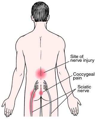 Sciatica | definition of sciatica by Medical dictionary