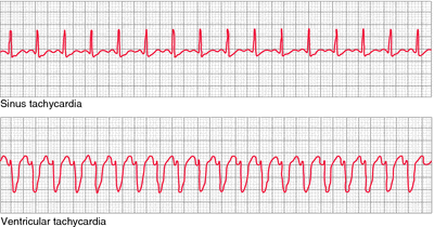 What Is Svt >> Supraventricular Tachycardia Definition Of Supraventricular