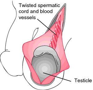 Tibial torsion | definition of tibial torsion by Medical dictionary